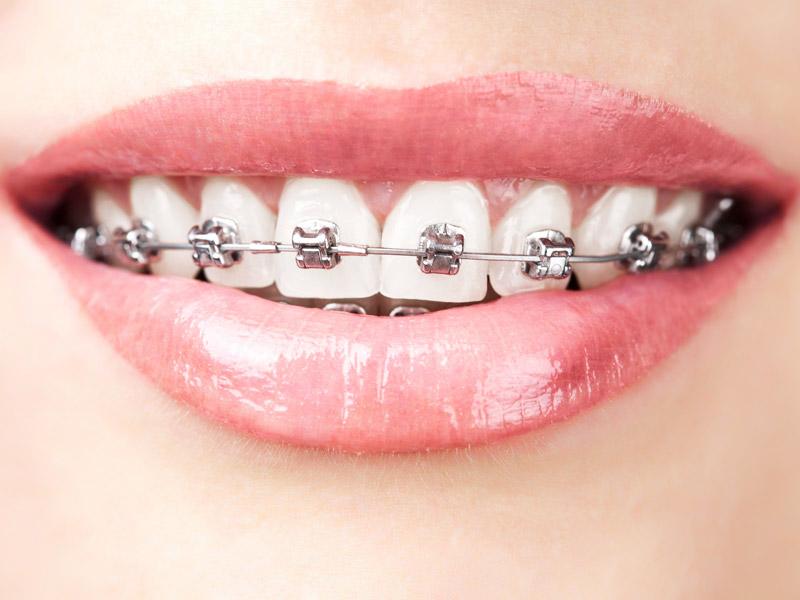 Studio dentistico a Prato | ortodonzia tradizionale